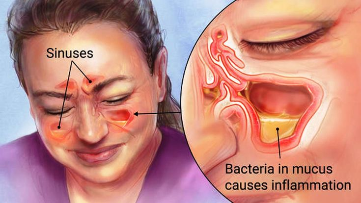 The definition of sinus infection, that is, sinusitis, is an inflammation or swelling of the tissues lining the sinuses. This condition happens when the sinuses are filled with fluid and bacteria instead of air. You recognize when someone has a sinus problems when these signs appear: stuffed nose, loss of smell, headaches, fever, cough or …