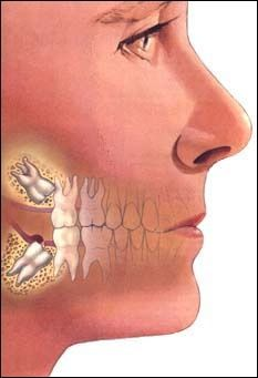 Oral & Maxillofacial Surgery is the specialty that focuses on surgery for diseases of the mouth, jaw and face.