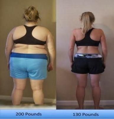 Can weight loss surgery cause cancer