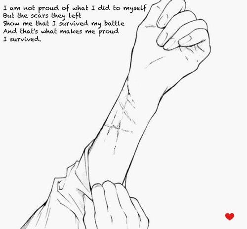 """Today my best friend saw my scars. She said """"why do you have these cuts?! Are you like emo or something?!?""""  I would've told her........... But the fact she thought it's because I'm emo, I couldn't. She wouldn't understand. She would leave me.. I blamed it on the dog.  :("""