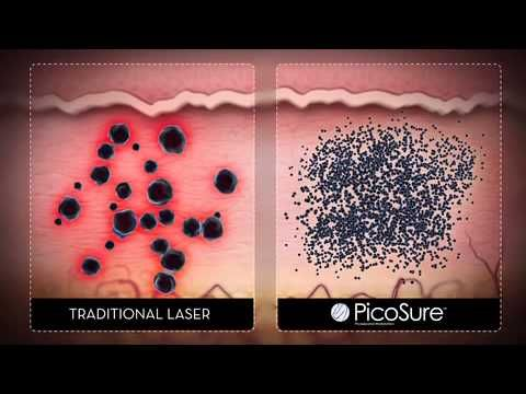 Laser tattoo removal north carolina how it works call for Absolute laser tattoo removal