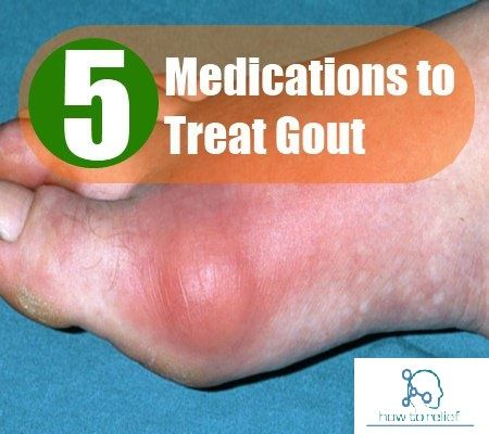 treatment guidelines for acute gout high uric acid in blood during pregnancy vegetables to remove uric acid