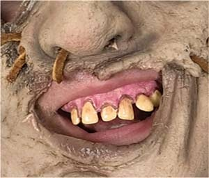 Leatherface Prosthetic Teeth