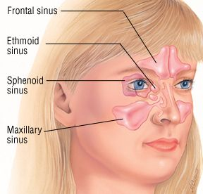 how to clear sinuses instantly