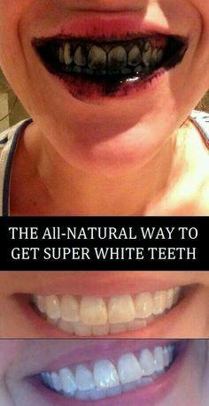 Teeth whitner