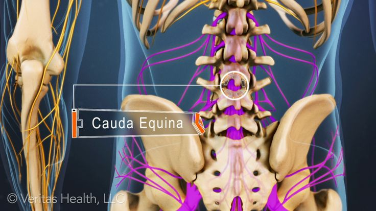 Cauda Equina syndrome is considered a medical emergency, and can be caused by several different problems in the lower spine.