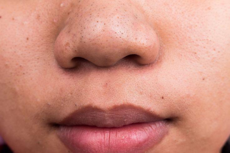 La limpieza facial es un tratamiento estético que permite eliminar las impurezas de la piel para facilitar su oxigenación y la renovación de sus células. En la actualidad existen muchos productos q…