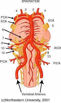 Brain stem strokes and vertigo