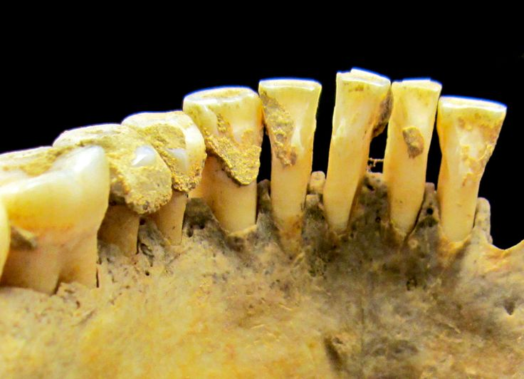 Tooth Plaque May Hold Clues About Ancient Life -  Archaeologists say dental calculus holds a trove of data to be studied.