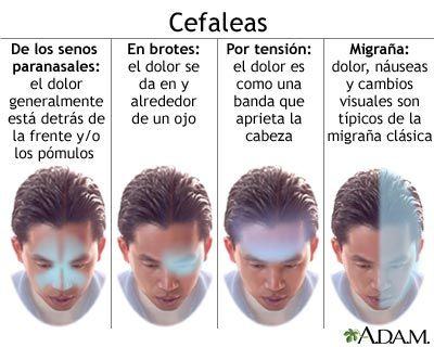 cefaleas dolor de cabeza migranas