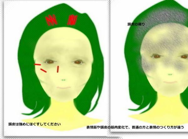 歯列矯正、顔の老化、顔が長くなる 頬こける なおし方 | 輪郭美顔、老け顔、歪みのなおし方  セラピスト戸塚の小顔整体