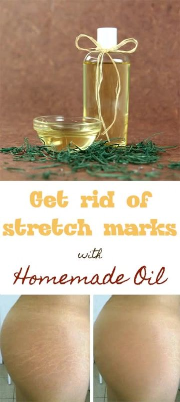 Get rid of stretch marks our special homemade oil DIY - All Natural Remedy