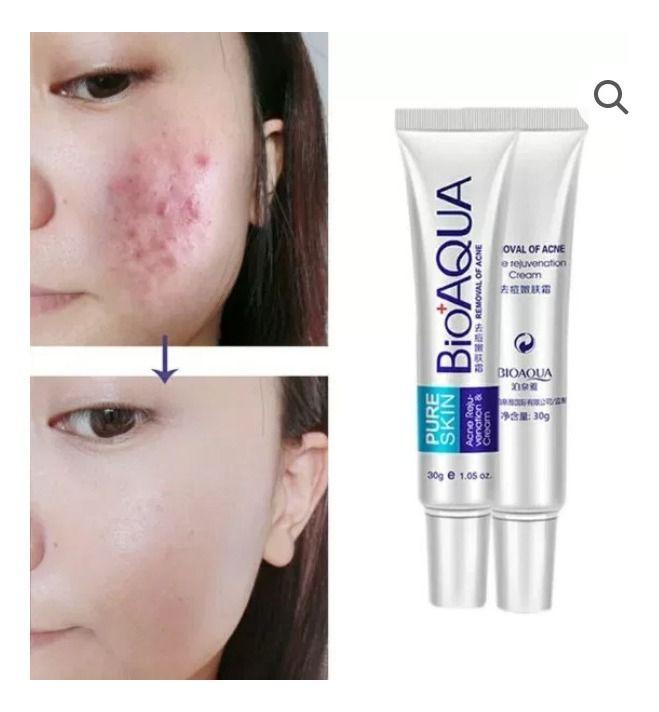 Crema Anti Acne Bioaqua Em 2020 Cremes Para O Rosto Cicatriz De