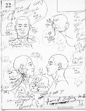 Coroners sketch of the wounds on Ronald Goldman.