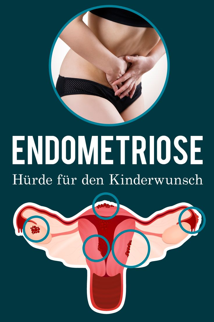 """Starke Menstruationsbeschwerden und ungewollt kinderlos – die Diagnose lautet in dem Fall häufig """"Endometriose"""". #Kinderwunsch #Endometriose"""