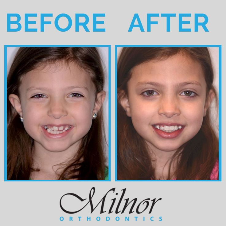 Crossbite and crowding before & after smile from Milnor