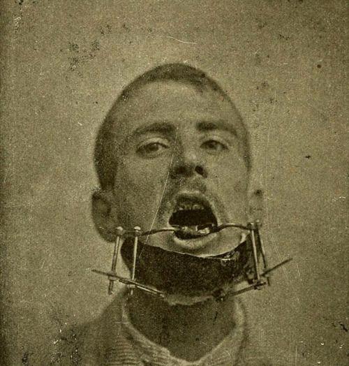 Apparatus to mend a broken jaw, from Karl Witzel's Chirurgie und Prothetik bei Kiefererkrankungen (1905)