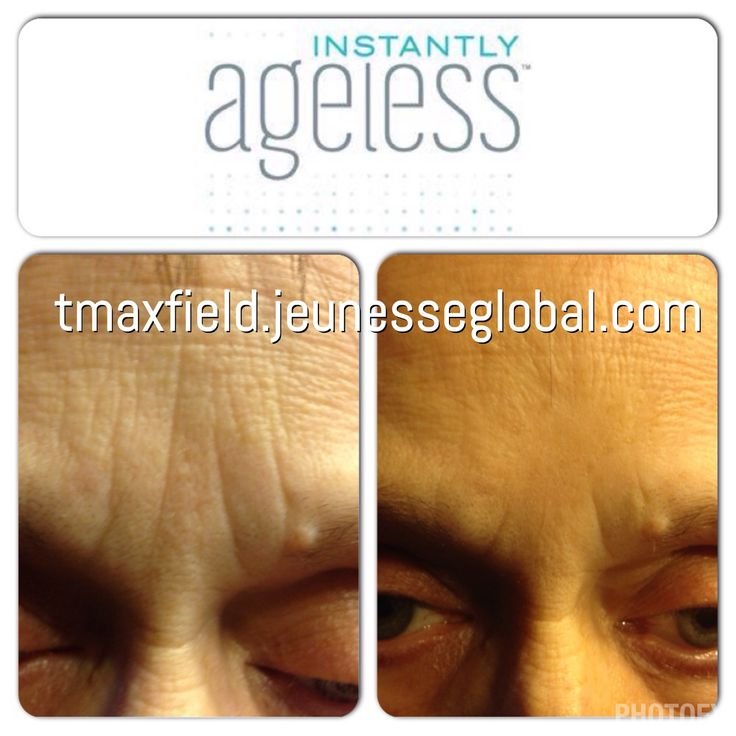 Instantly Ageless by Jeunesse  Take 10 years off in 2 minutes! My moms 2 minute results  Skin care, anti aging, wrinkles, forehead, lines, elevens, Botox alternatives  tmaxfield.jeunesseglobal.com