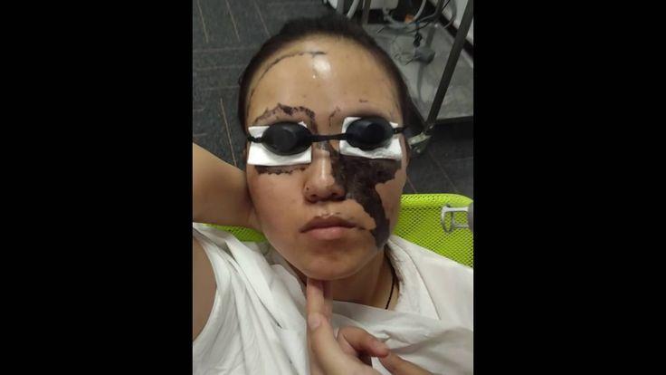 nd yag laser for skin rejuvenation