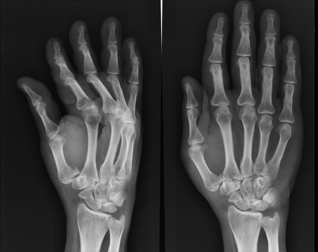 A Bennett's fracture dislocation of the thumb results from forced abduction of thumb.  Radiographic features two piece fracture dislocation of the base of the thumb intra-articular dorsolateral dislocation small fragment of 1st metacarpal continues to articulate with trapezium lateral retraction of first metacarpal shaft by abductor pollicis longus.  Read more: http://radiopaedia.org/articles/bennett-fracture-dislocation