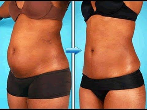Como eliminar gordura localizada!