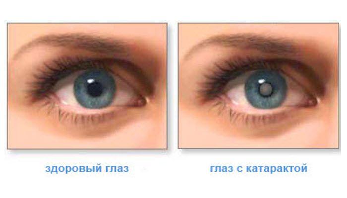 Эта мощная трава восстановит зрение и избавит от 9 заболеваний глаз, в том числе катаракты и глаукомы! Мы предлагаем вам рецепты соков с петрушкой для здоровых глаз: 1....
