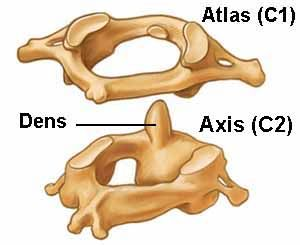 altas axis of the cervical spine.  When out of alignment can cause your thinking to be unclear.  Chiropractors... my chiropractor is awesome!