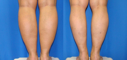 Calves Liposuction Before and after photos