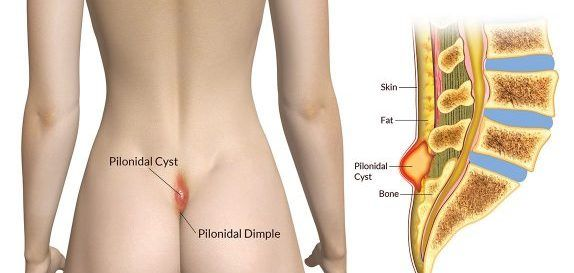 how to cure pilonidal cyst without surgery pdf