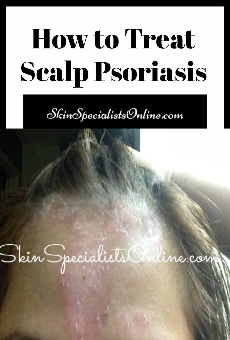 How to treat scalp psoriasis. Dermatologist tips for hair diseases #PsoriasisHair