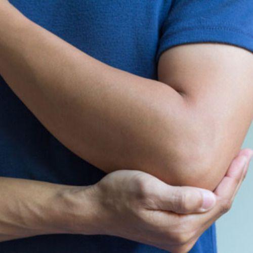 How to treat bursitis disease | Bursitis Bursitis ...