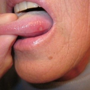 9 Wonderful Home Remedies For Sore Tongue