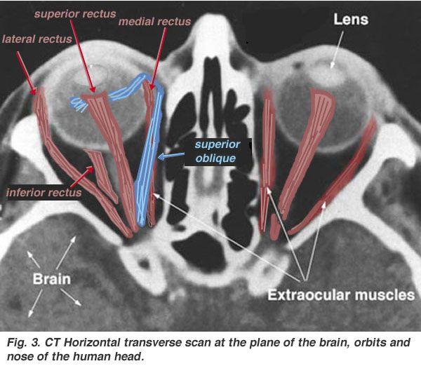 Image result for eyeballs anatomy