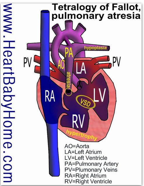 tetralogy of fallot Tetralogy of fallot tetralogy of fallot (tof) is the most common cyanotic heart defect, occurring in approximately 400 per million live births and the most common.