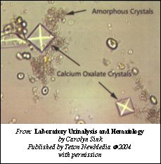 Calcium Oxalate Dihydrate Crystals In Urine