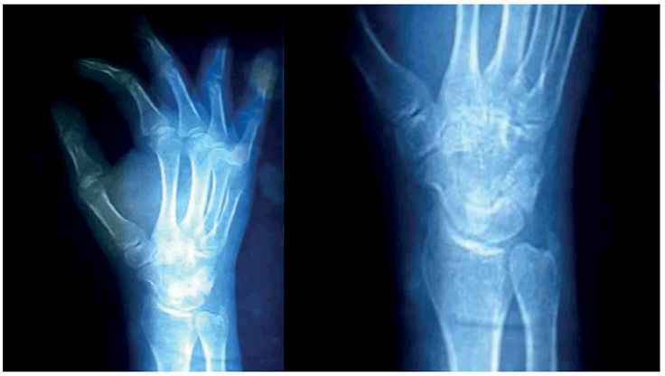 Extensor Tendon Injury in the Distal Forearm of Right Hand Owing to Accident