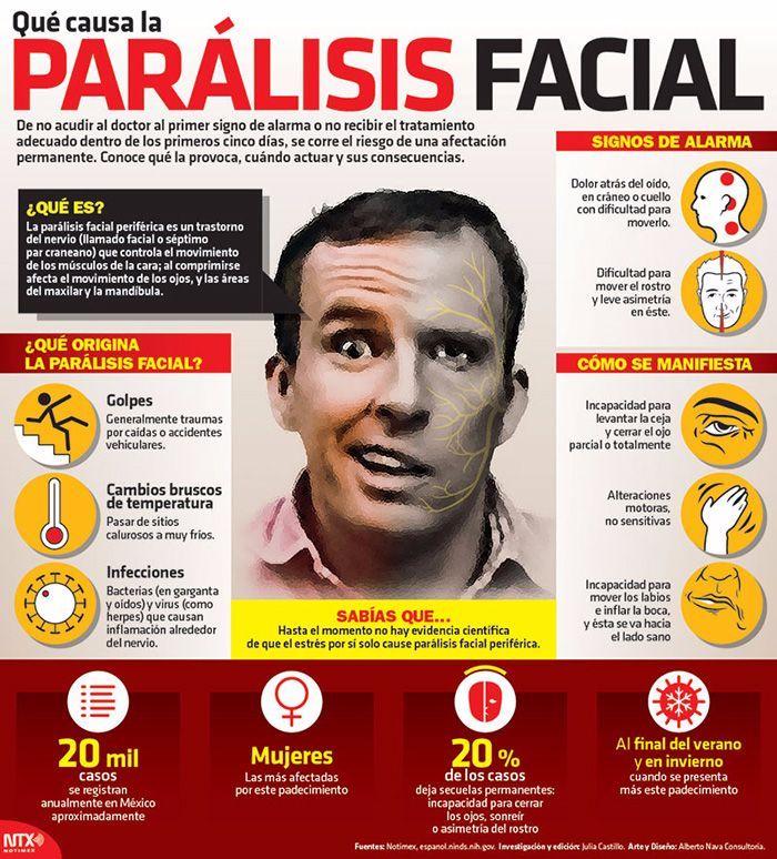Descubre todo lo necesario sobre la parálisis facial, para poder detectar los síntomas a tiempo. #salud #infografias #paralisis