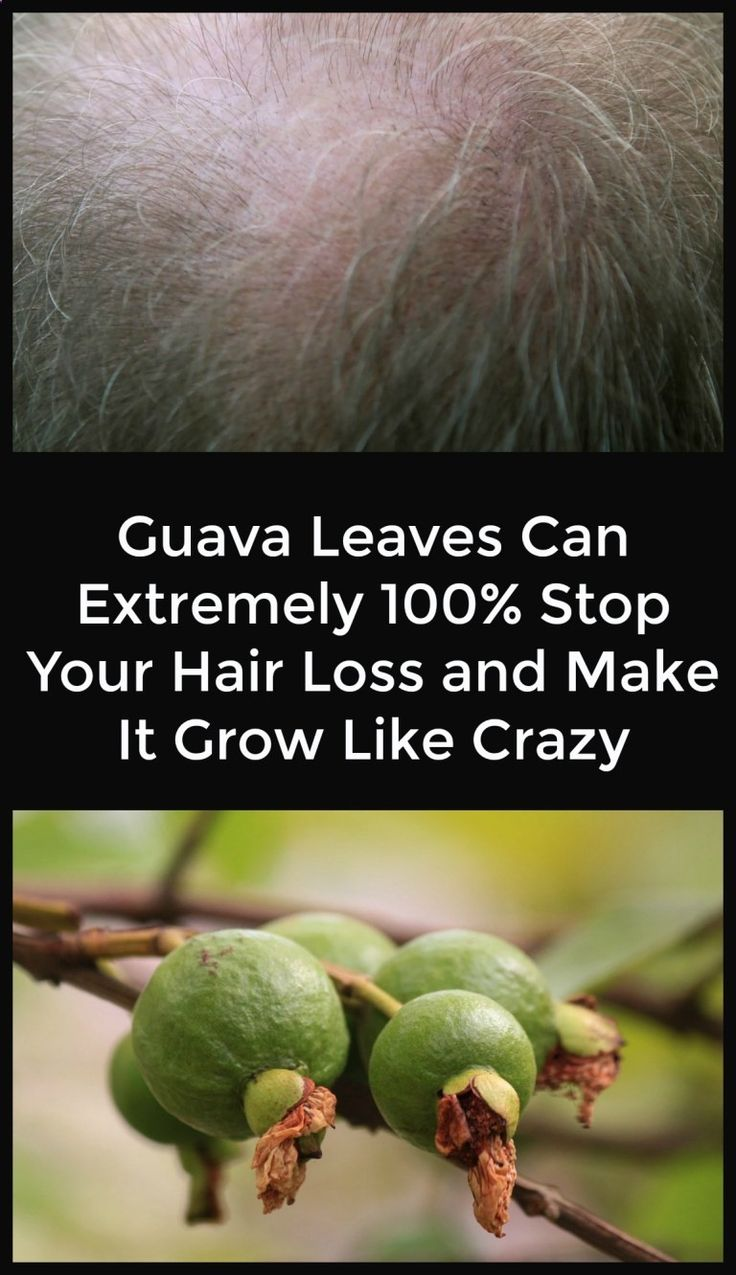 Guava Leaves Can Extremely 100% Stop Your Hair Loss and Make It Grow Like Crazy