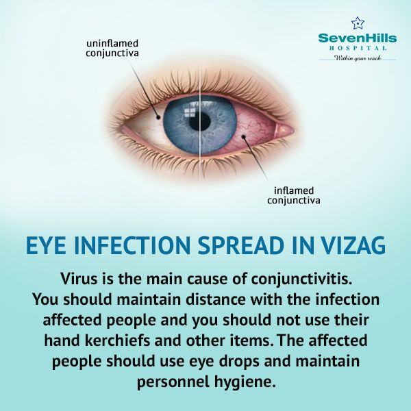 After #HudhudCyclone, a large number of people in #Vizag city have been affected with conjunctivitis. People are advised to keep a distance from the infected people and not to shake hands with them and use glasses to minimize the spreading of the virus.  Cleanliness will go a long way in keeping away from the eye infection.SevenHills Hospital