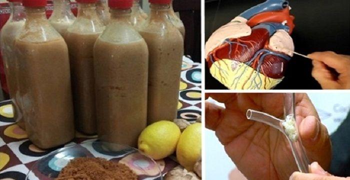 Ak sa cholesterol vtepnách nahromadí do nadmerných množstiev, dochádza kzúženiu tepien, čo zabráni správnemu prietoku krvi. To následne zdvihne tlak krvi azvýši riziko infarktu, či mŕtvice. Zlý cholesterol sa často lieči rôznymi bežnými medicínskymi spôsobmi, ale môžete vyskúšať aj niektoré veľmi efektívne prírodné liečivá bez toho, aby ste museli vystavovať svoje zdravie riziku. Ak by …