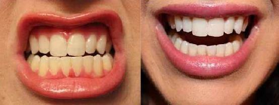 Erika Schneiders Blog. Wie ich meine Zähne in 2 Wochen aufgehellt habe