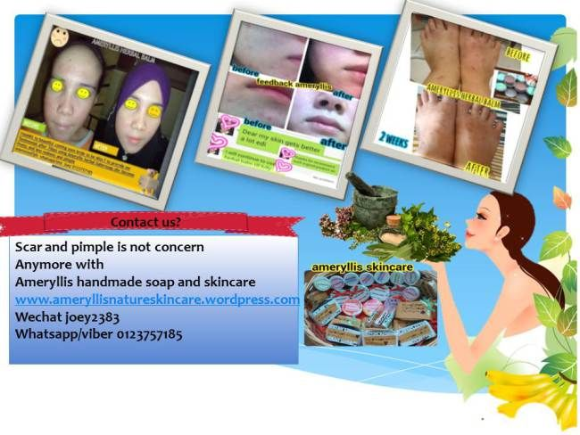 """scar and pimple not concern anymore with ameryllis handmade soap and skincare Jun26 scar and pimple is no longer concern with natural handmade soap and skincare from ameryllis nature glad our user have tested and sharing with us their photo testimonial interested to looking budgeted effective skincare? important is halal and natural ingredient"""" pm us now https://www.facebook.com/pages/Ameryllis-Nature/171793959688005?ref=hl or wechat joey2383 /whatsapp 0123757185…"""