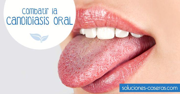 La candidiasis oral es una infección que afecta a la boca y que causa erupciones y picor. ¿Cómo podemos curarla?