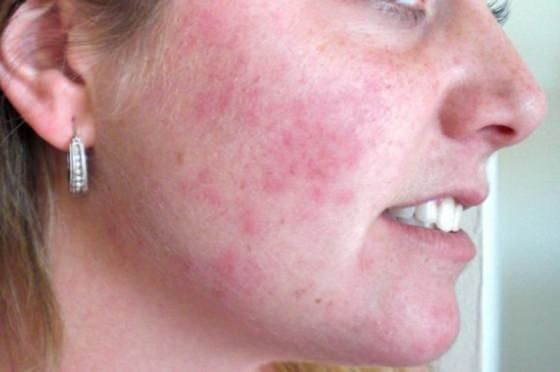 Treatment for facial hives