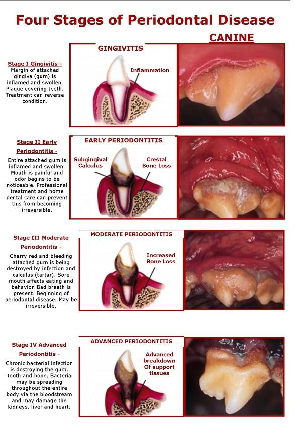 Four Stages of Periodontal Disease - Have your pet's mouth checked by a veterinarian 1-2 times per year to prevent dental disease from developing. You can add year to their lives with regular dental cleanings.