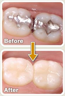 Get the mercury out of my teeth...: Lakes Worth, Dental Implant, Colors Fillings, Composition Resins, Composition Fillings, Resins Fillings, Fillings Composition, Dental Service, Dental Incorrect