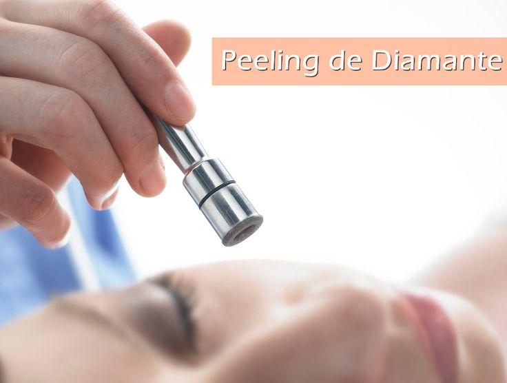 Peeling de Diamante é um tratamento estético para remover manchas na pele, promovendo o clareamento da pele. Eu já fiz e aprovei o resultado!
