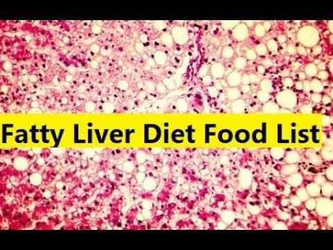 Fatty Liver Diet Food List - Fatty Liver Diet Guide - YouTube