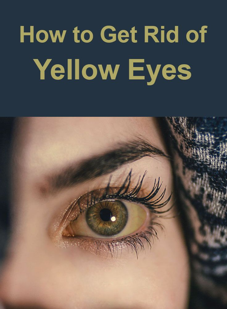 How To Get Rid Of Yellow Eyes Yellow Eyes Yellow Eyes Causes Itchy Eyes