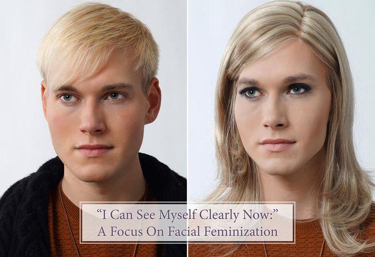 M2F: Facial Feminization. Dr Rumer